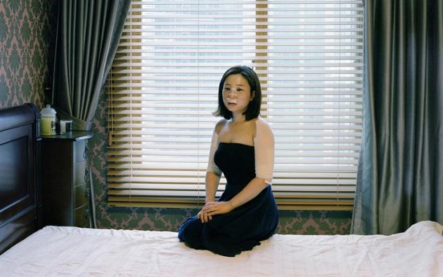Žena, která čeká na další plastickou operaci