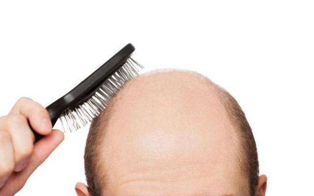 Vypadávání vlasů